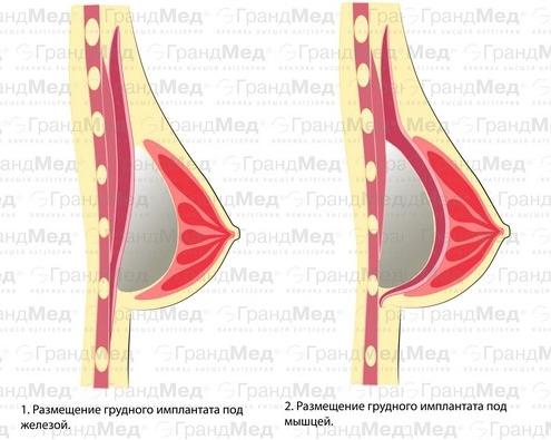 увеличение груди до родов