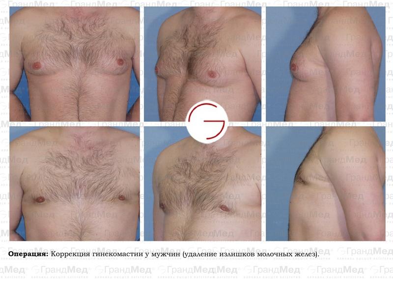 Как они влияют на кормление импланты в грудь