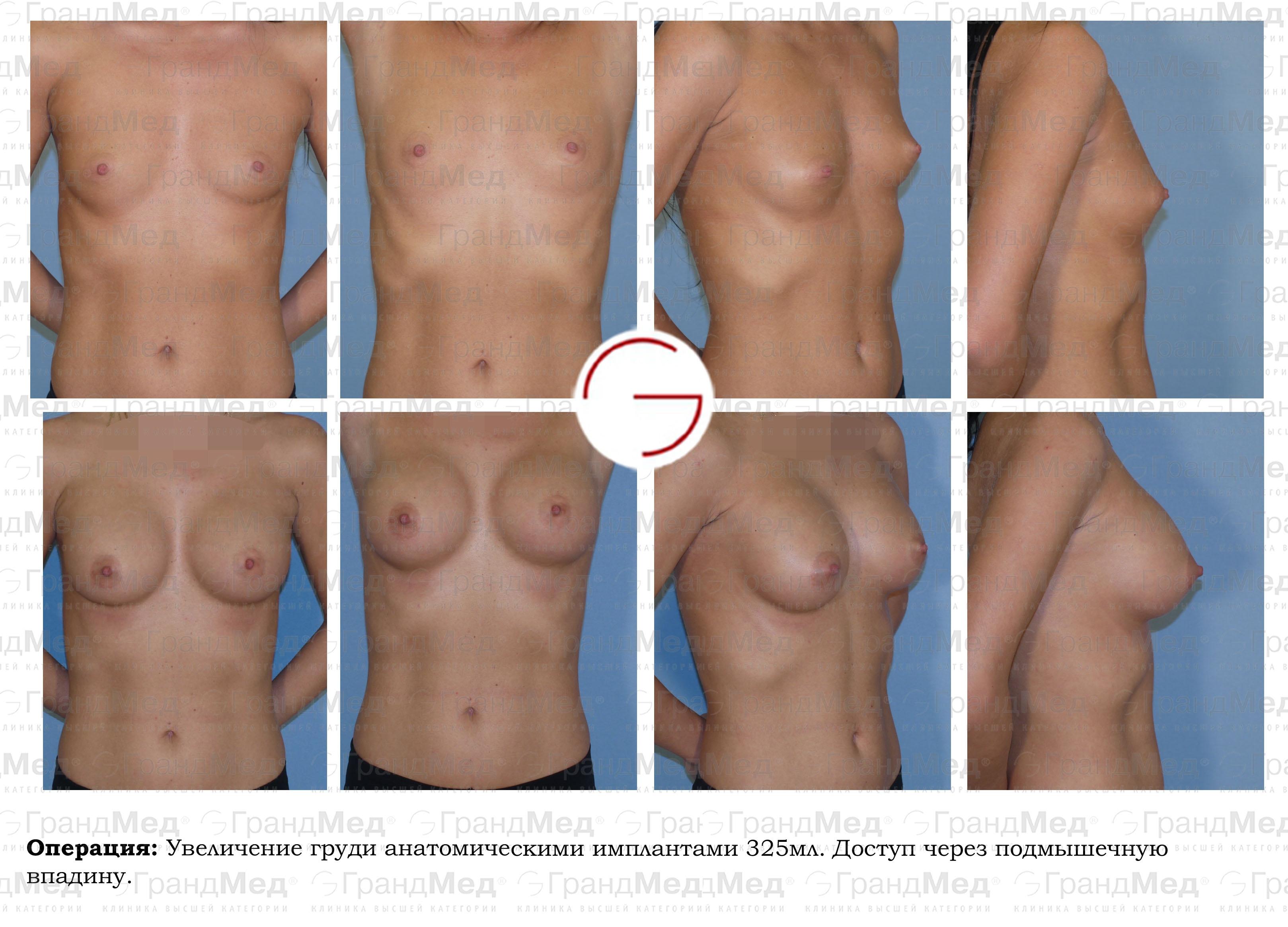 Увеличение груди имплант цены