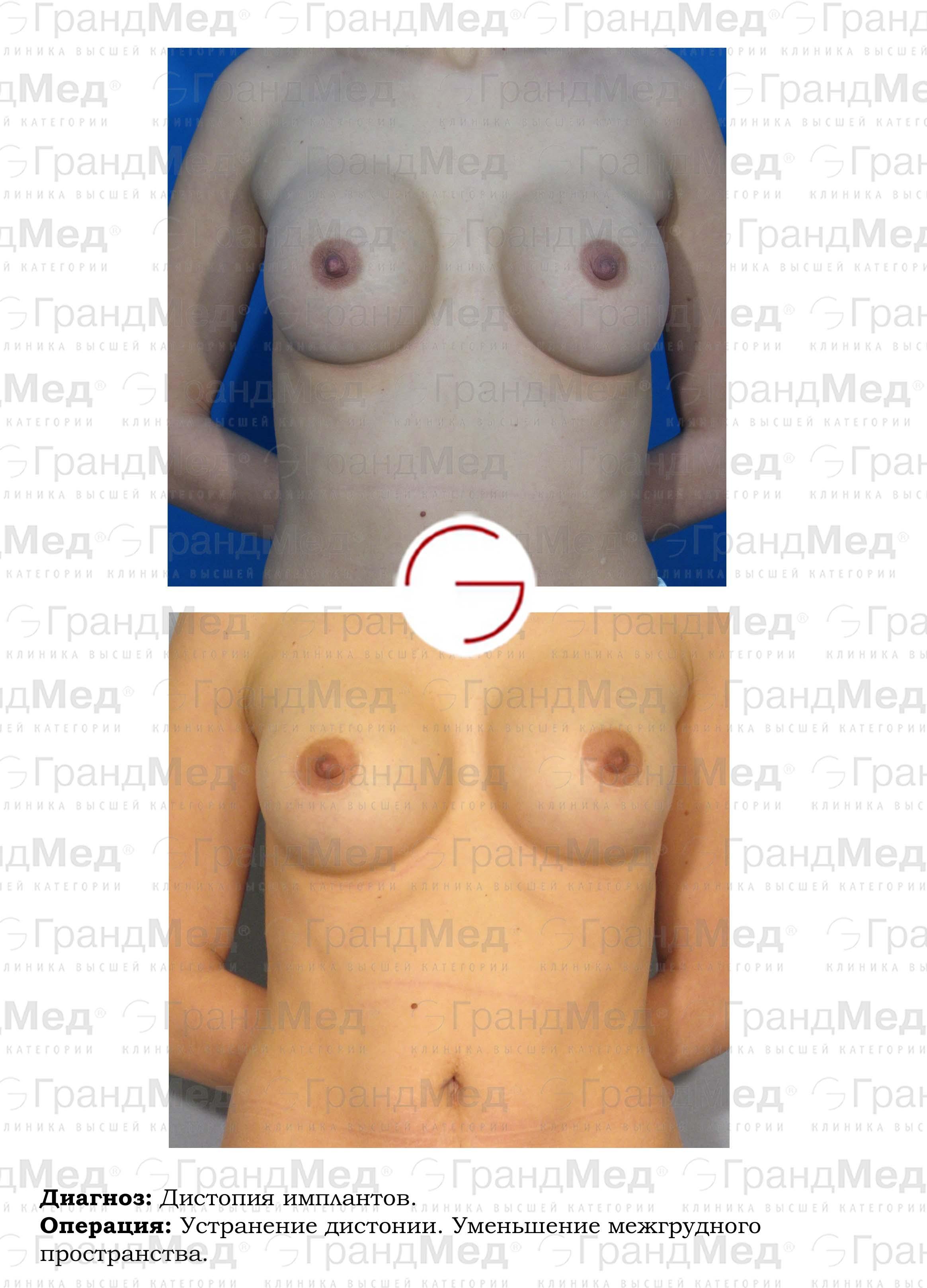 Как заметно увеличить грудь