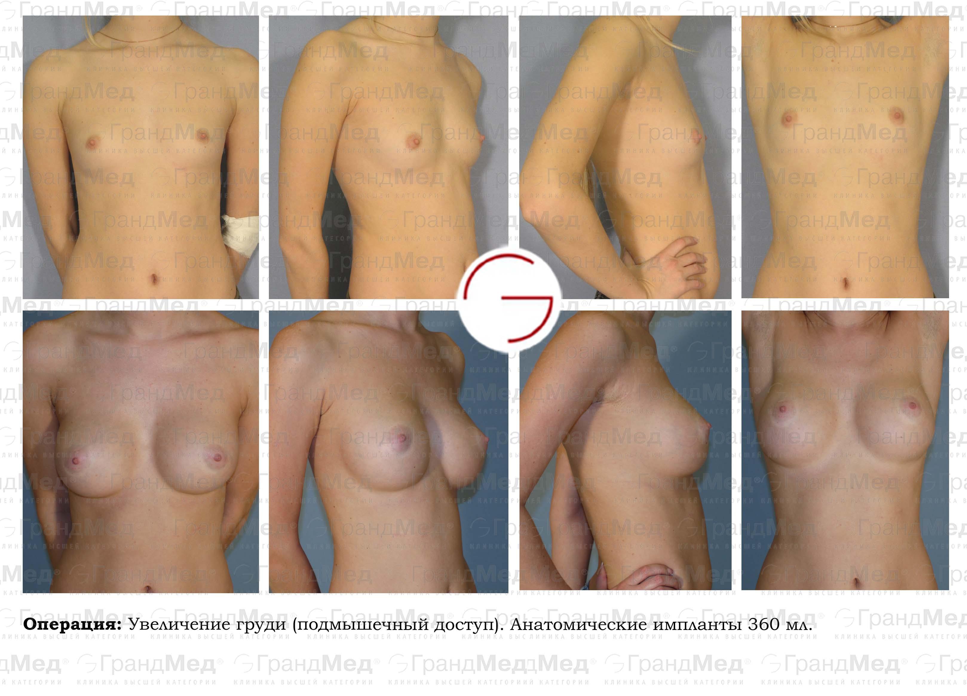 intimnaya-hirurgiya-uvelichenie-chlena