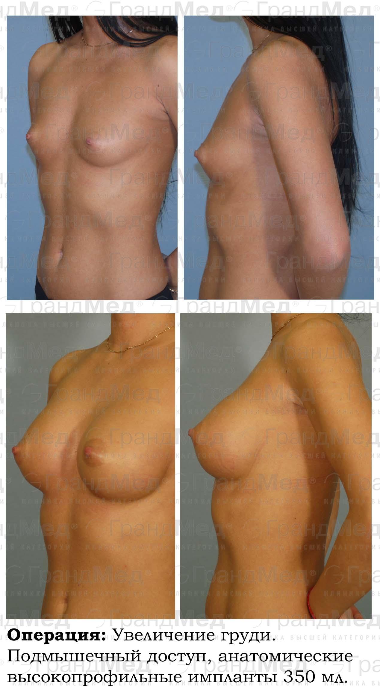 Увеличить грудь без упражнений