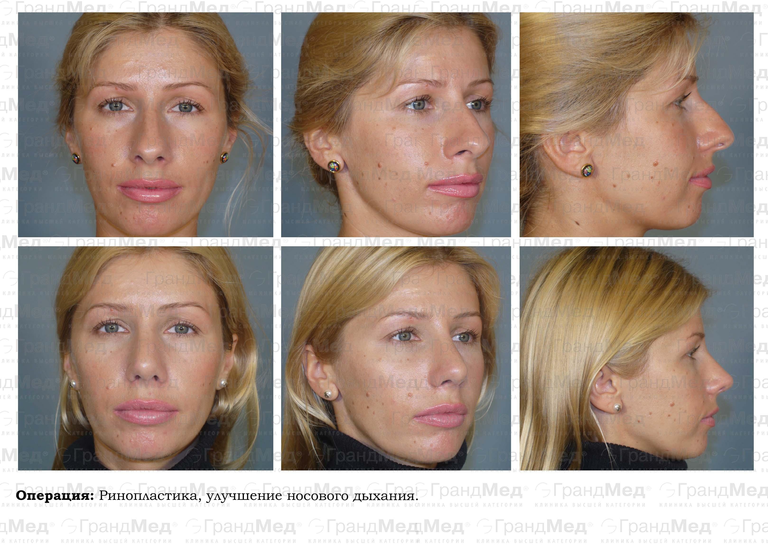 plasticheskaya-intim-hirurgiya-v-krasnoyarske-foto-tseni