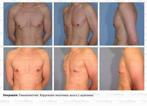 Маммопластика под железу отзывы